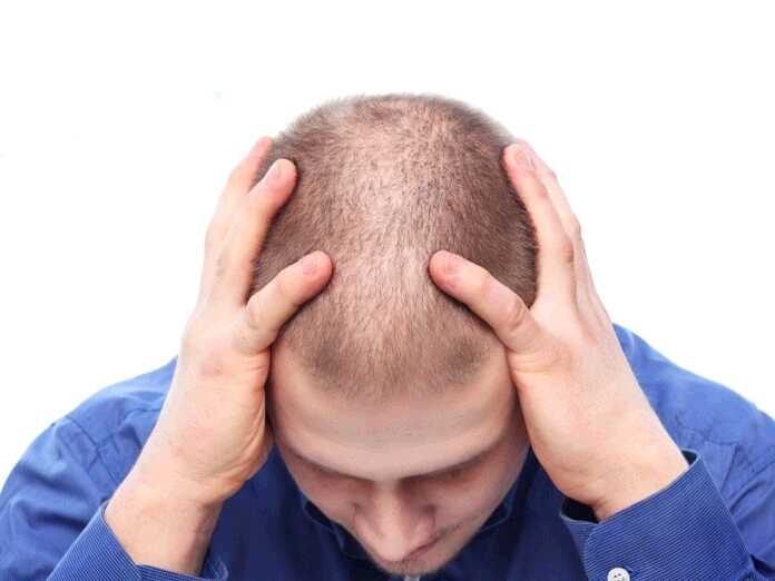 carboxytherapy for hair loss