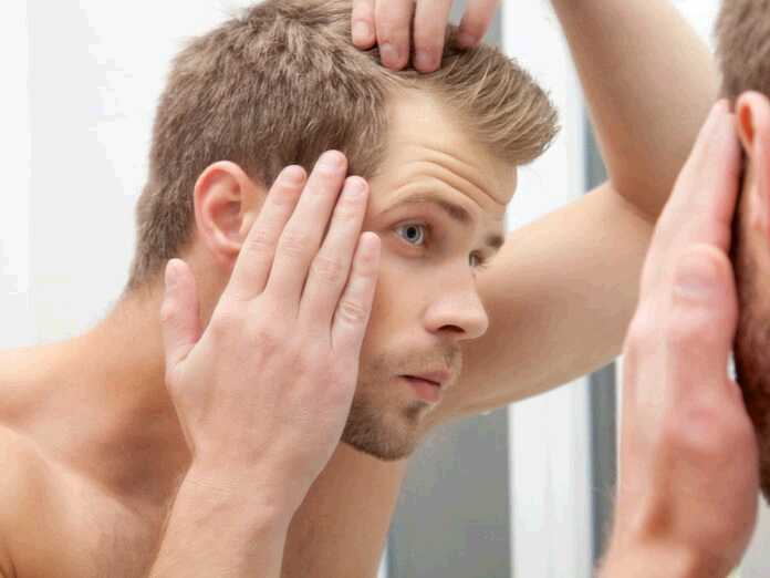 what is invisible baldness