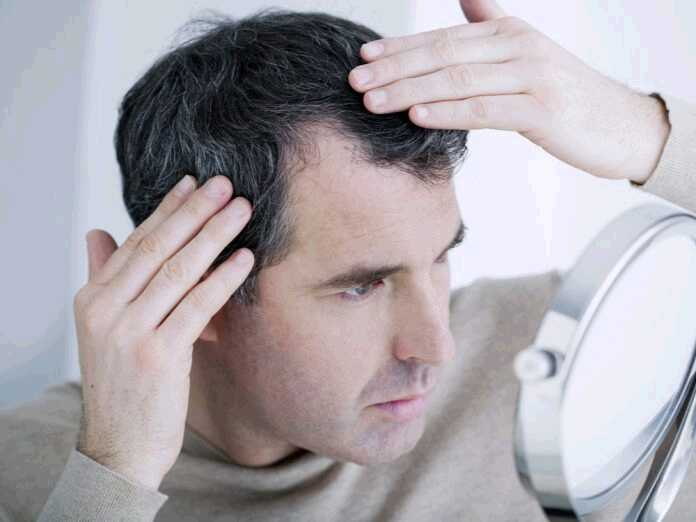 hair loss is a symptom of serious health problems
