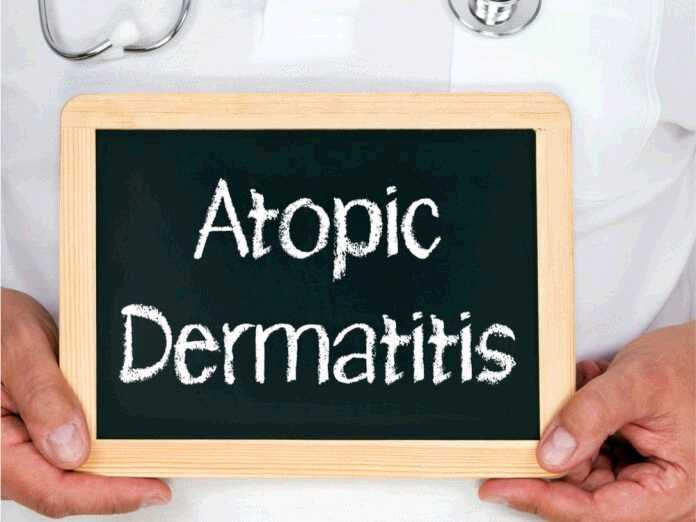 atopic dermatitis and hair loss