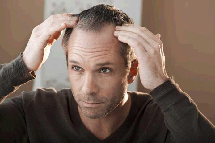 hair-loss-10
